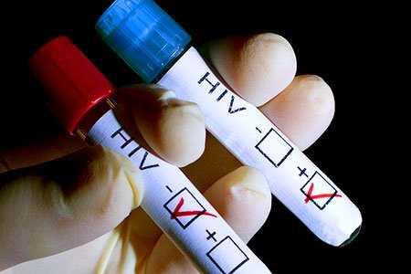 قبل از ازدواج تست اچ آی وی بدهیم؟